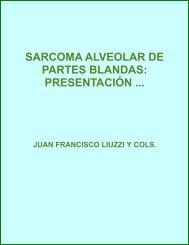 Sarcoma alveolar de partes blandas - evistas.mes.edu.cu
