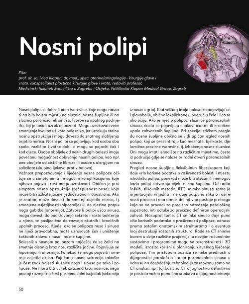 Nosni polipi - Poliklinika Klapan Medical Group