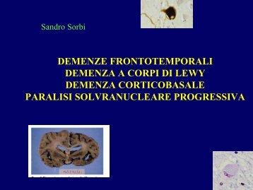 Demenze temporali - Demenza a corpi di Lewy - E-learning