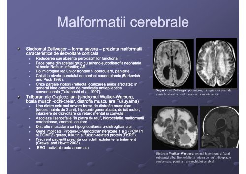 epilepsia in boli metabolice [Compatibility Mode]