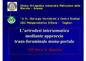 L'artrodesi intersomatica mediante approccio trans - Pierpaolo Mura