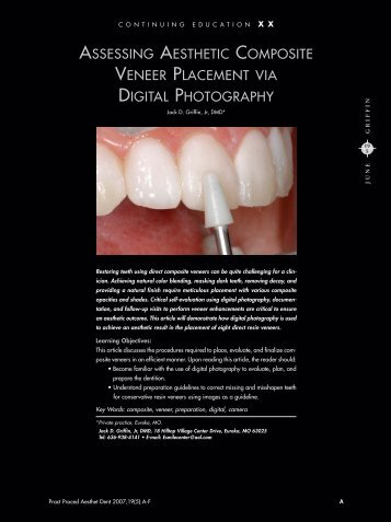 assessing aesthetic composite veneer placement via digital ...
