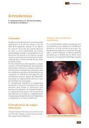 Eritrodermias