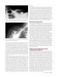 Le fratture della clavicola - Fondazione Internazionale Menarini - Page 3
