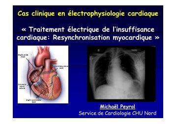Cas clinique en électrophysiologie cardiaque « Traitement ...