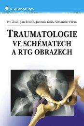 Traumatologie ve schématech a RTG obrazech - eReading