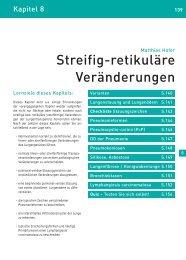 Streifig-retikuläre Veränderungen - Klinikfinder.de