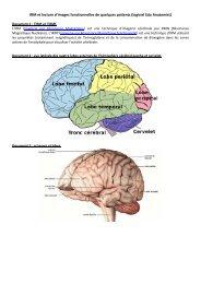IRM et lecture d'images fonctionnelles de quelques patients (logiciel ...