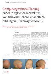Craniosynostosen - ZIB