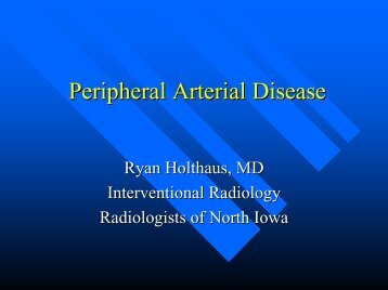 Peripheral Arterial Disease - Mercy Medical Center-North Iowa
