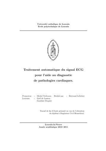 Traitement automatique du signal ECG pour l'aide au diagnostic de ...