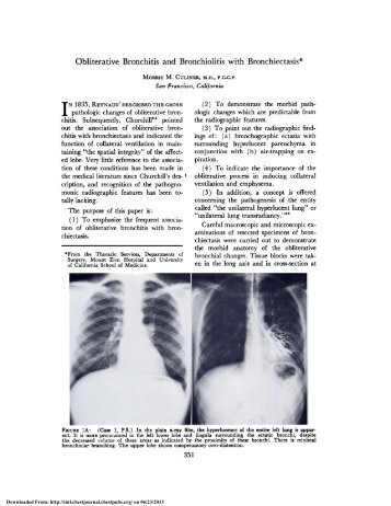 Obliterative Bronchitis and Bronchiolitis with Bronchiectasis*