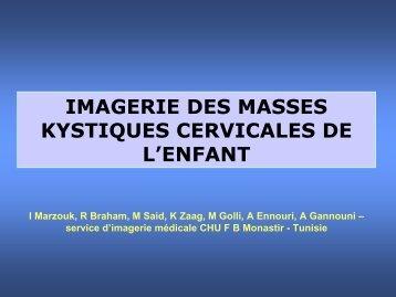 imagerie des masses kystiques cervicales de l'enfant - smorl