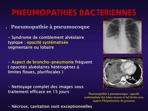 PNEUMOPATHIES BACTERIENNE