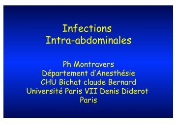 Antibiothérapie des infections intra-abdominales - Infectio-lille.com