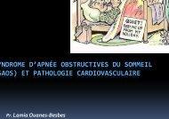syndrome d'apnée obstructives du - Sciencespharmaceutiques.org.tn