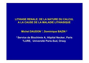 LITHIASE RENALE: DE LA NATURE DU CALCUL A LA CAUSE DE ...