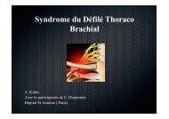 Syndrome du Défilé Thoraco Brachial - ClubOrtho.fr