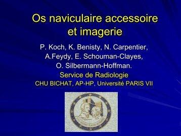 Os naviculaire accessoire et imagerie