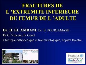 fractures de l - Ecole de chirurgie du Fer à Moulin