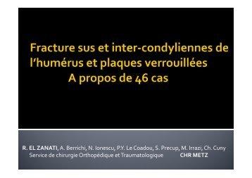 Fractures sus et inter-condyliennes de l'humérus et plaques ...