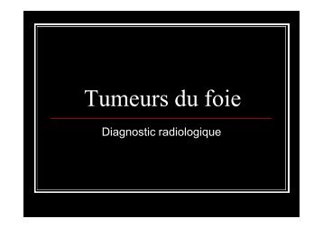 Tumeurs du foie interne - UBIR