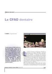 La CFAO dentaire - Information dentaire