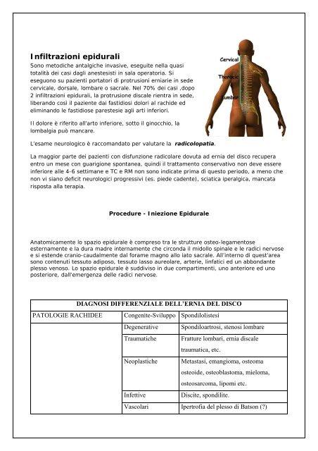 Epidurale - Anestesia Epidurale