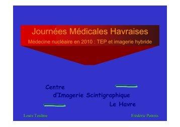 Scintigraphie osseuse - Le Havre - Santé