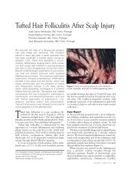 Tufted Hair Folliculitis After Scalp Injury - Skin & Allergy News