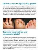 En finir avec la mycose des pieds! - Melisana - Page 2