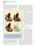 (Criss- Cross Heart) y Transposición Anatómicamente Corregida de ... - Page 2