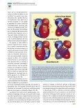 (Criss- Cross Heart) y Transposición Anatómicamente Corregida de ... - Page 4
