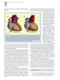 (Criss- Cross Heart) y Transposición Anatómicamente Corregida de ... - Page 5