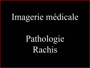 Pathologie du Rachis