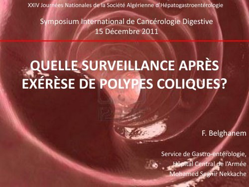 quelle surveillance apres exerese de polypes coliques? - sahge