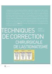 CHIRURGICALE DE L'ASTIGMATISME - Bbgr