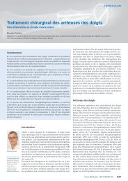 Traitement chirurgical des arthroses des doigts - Swiss Medical Forum