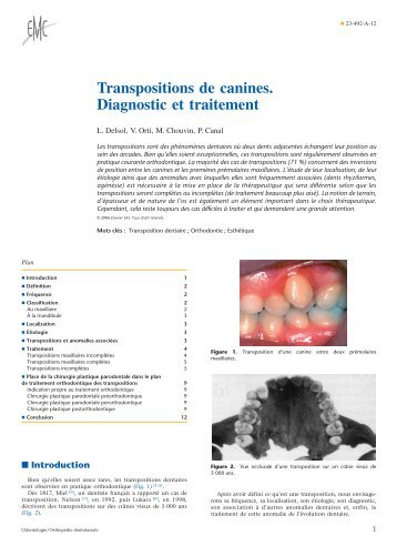 Transpositions de canines. Diagnostic et traitement - Belbacha Dental