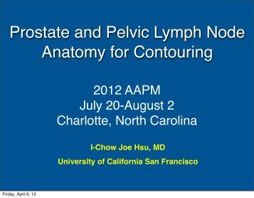 Prostate and Pelvic Lymph Node Anatomy for Contouring