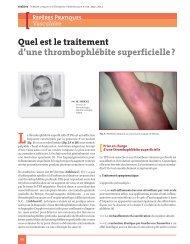 Quel est le traitement d'une thrombophlébite superficielle - Réalités ...