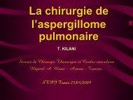 La chirurgie de l'aspergillome pulmonaire(T. KILANI)