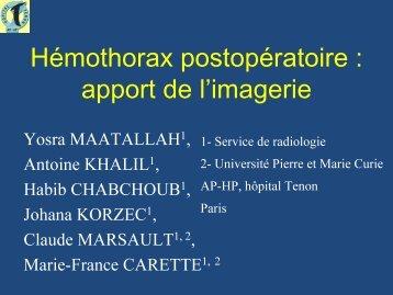Hémothorax postopératoire : apport de l'imagerie