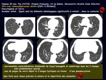 LM CC thorax miliaire BK HIV IRIS - RADIOLOGIE BRABOIS