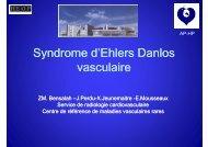 Document PDF syndrome d'Elhers Danlos vasculaire