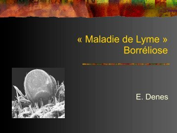 « Maladie de Lyme » Borréliose
