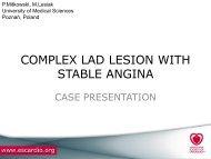 Stable angina pectoris, CCS II