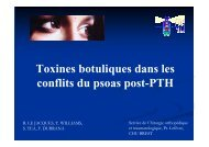 Injection de toxines botuliques dans les conflits du psoas - GECO