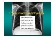 Les Syndromes radiologiques - Soutien Pneumologique International