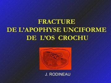 FRACTURES DE L'APOPHYSE UNCIFORME DE L'OS CROCHU